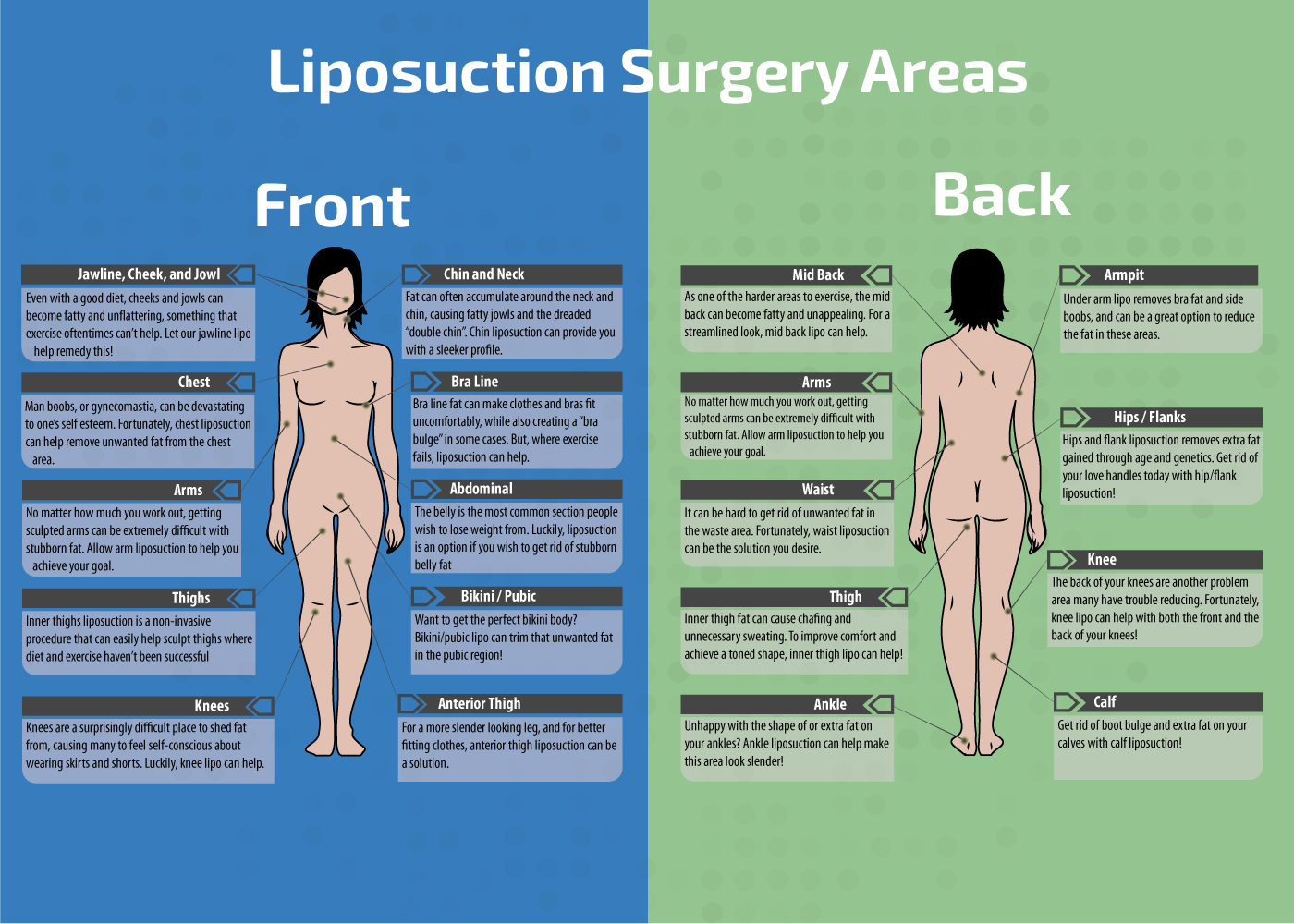 Benefits and Treatments of Liposuction