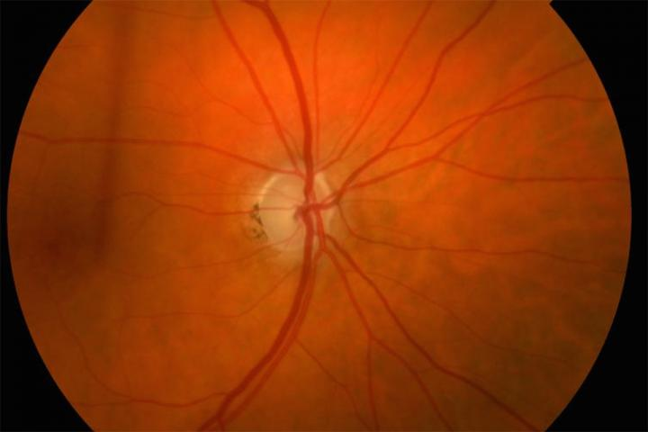 Potential predictor of glaucoma damage identified, treatment for glaucoma, glaucoma prevention, is glaucoma hereditary, glaucoma cure, what causes glaucoma, how long does it take to go blind from glaucoma, glaucoma signs and symptoms, glaucoma and diabetes,