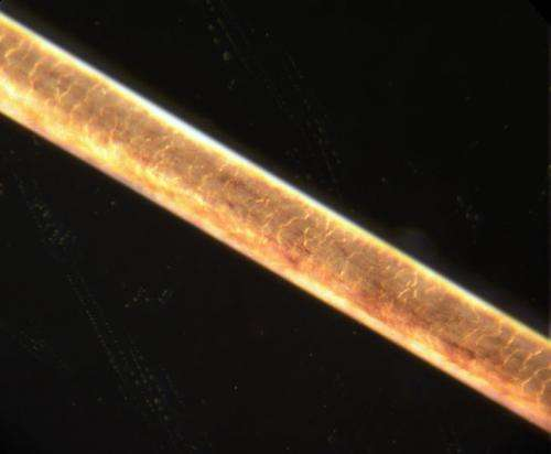 Scientists find skin cells at the root of balding, gray hair
