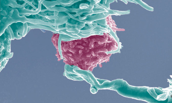 Answering your questions about cancer, inflammation, and immunity