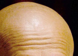 New baldness cause accidentally discovered by scientists could lead to hair loss treatment