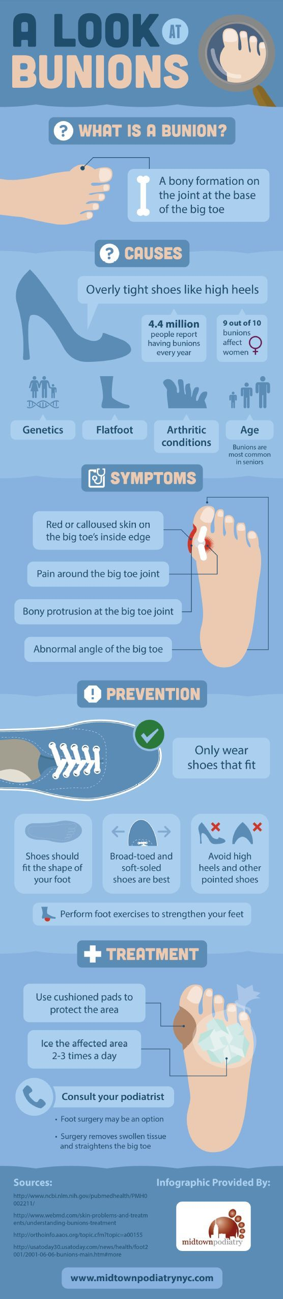 A Look At Bunions