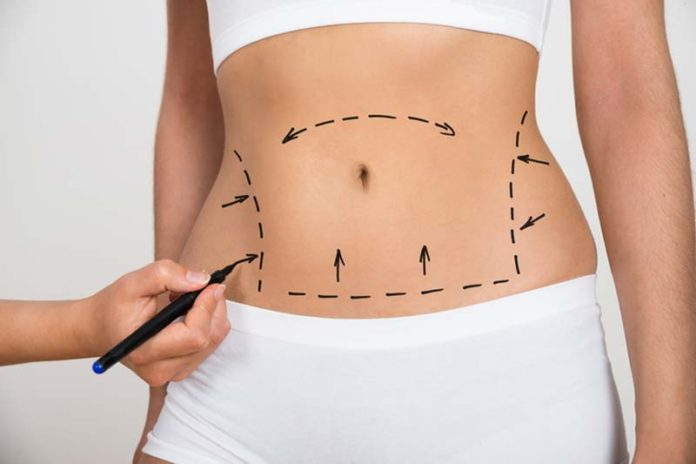 Fitness and Surgery, fitness for work after surgery, pre surgery exercise, can i exercise the day of surgery, preparing your body for surgery, returning to work after operation, return to work after surgery letter, can i exercise the morning of surgery, taking time off work for an operation,