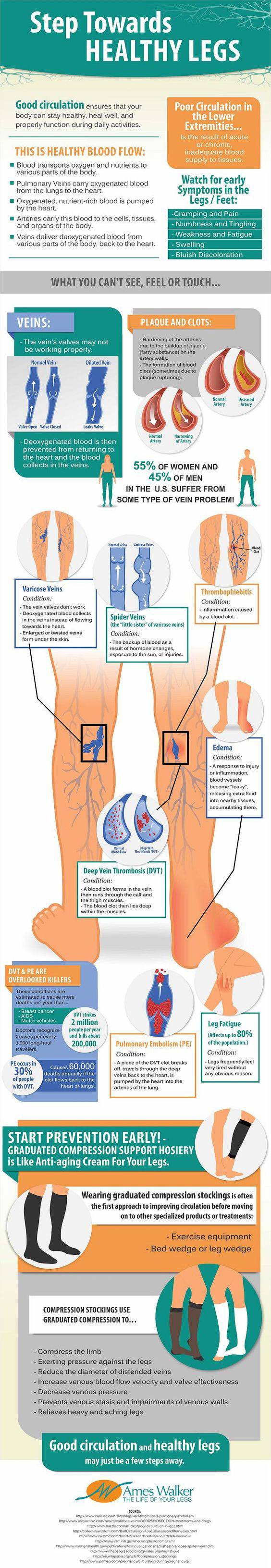 Treatments for Aching Legs and Feet