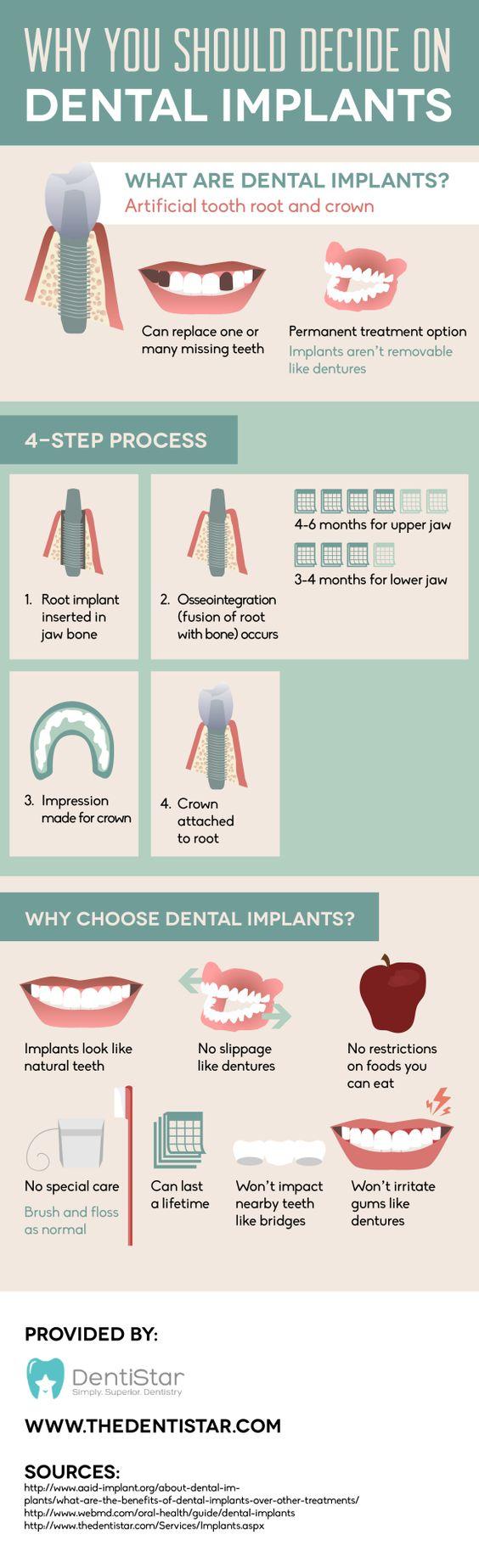 Why you should decide on dental implants