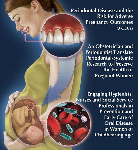 Periodontal disease and Pregnancy