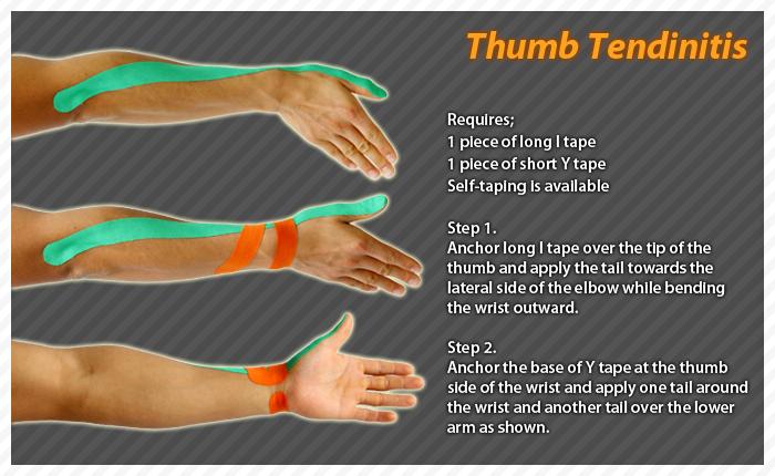 Thumb Tendinitis