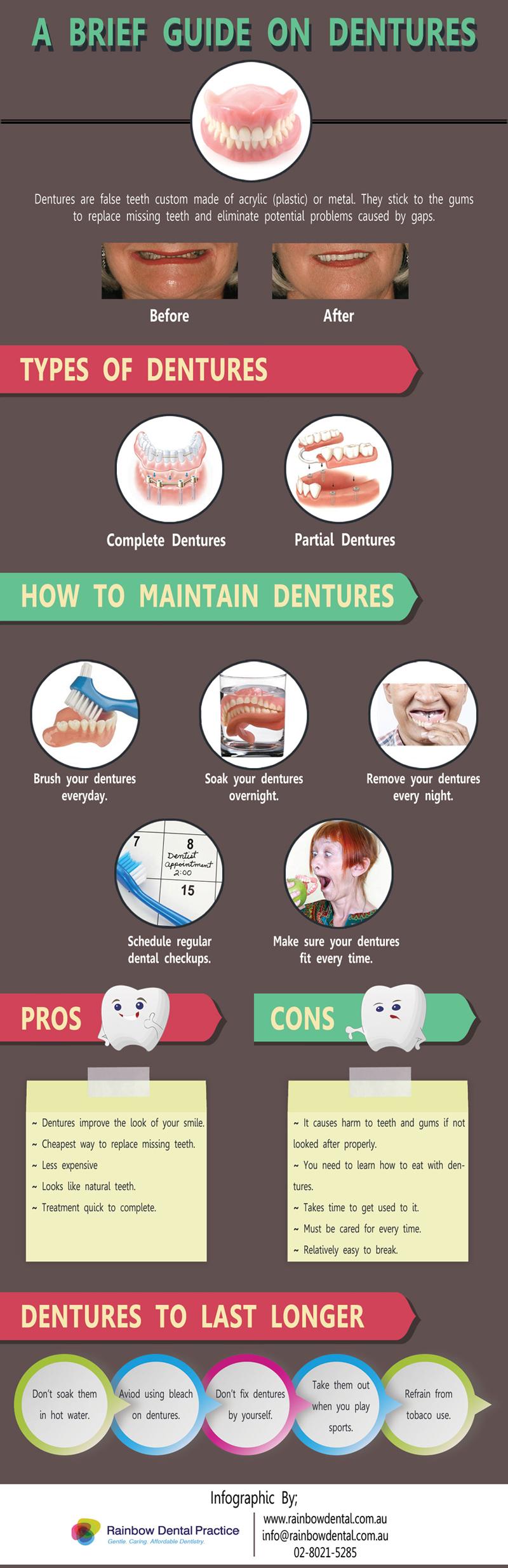 brief guide dentures