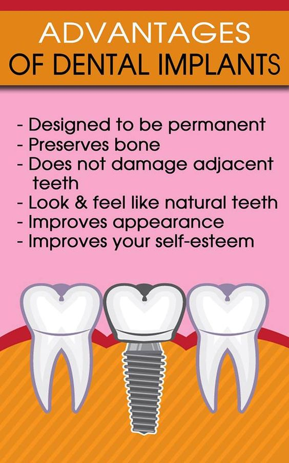 advantages of dental implants 2