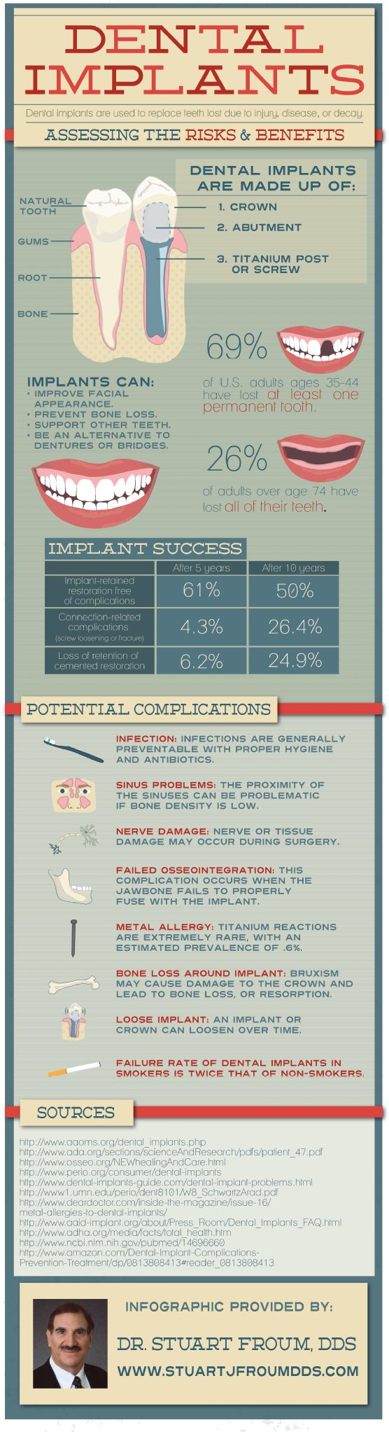 assessing the risks and benefits of dental implants