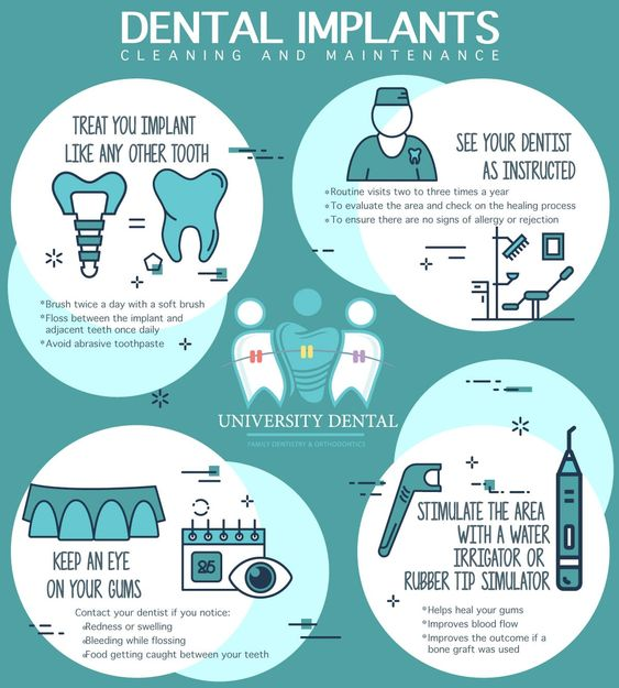 dental implants cleaning and maintenance