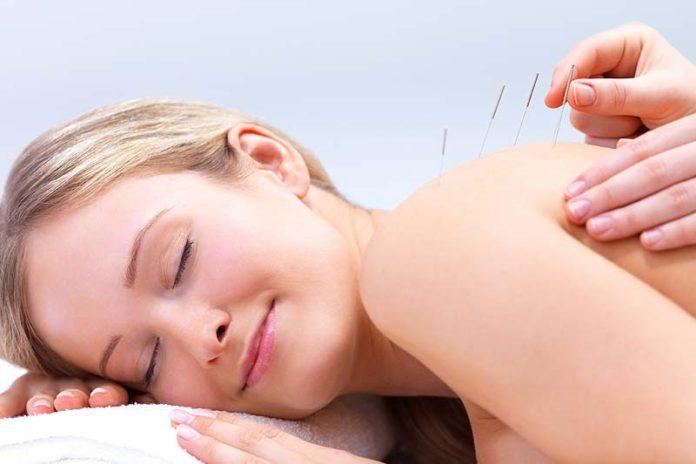 The Origin of Acupuncture, acupuncture history and facts, acupuncture facts, acupuncture meaning, what is acupuncture, acupuncture how it works, acupuncture history timeline, acupuncture benefits, brief history of acupuncture,