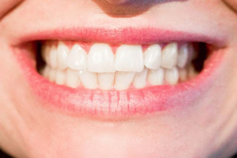 How the teeth change with time, and how you can take care of them