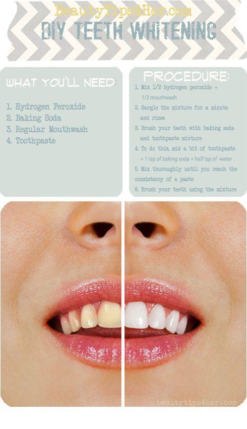 DIY Teeth Whitening