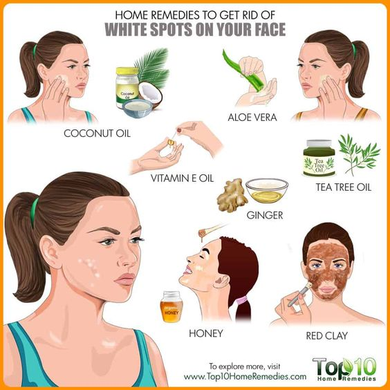 Home remedies to get rid of White spots on your face