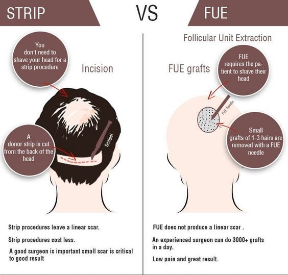 Strip vs Fue hair replacement therapy