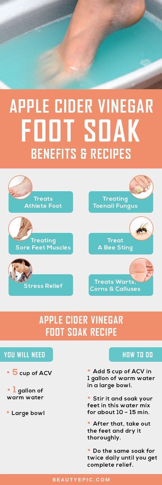 Apple Cider Vinegar Foot Soak Benefits and Recipes