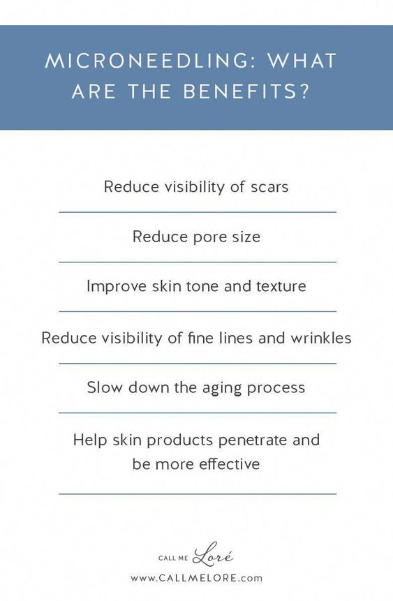 MicroNeedling what are the benefits