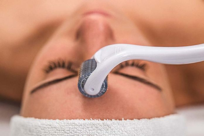 Understanding How Microneedling Works and What to Expect