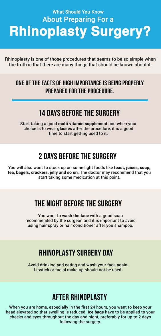 What should you know about preparing for a Rhinoplasty Surgery