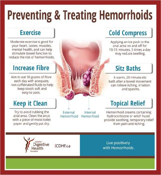 Preventing and Treating hemorrhoids