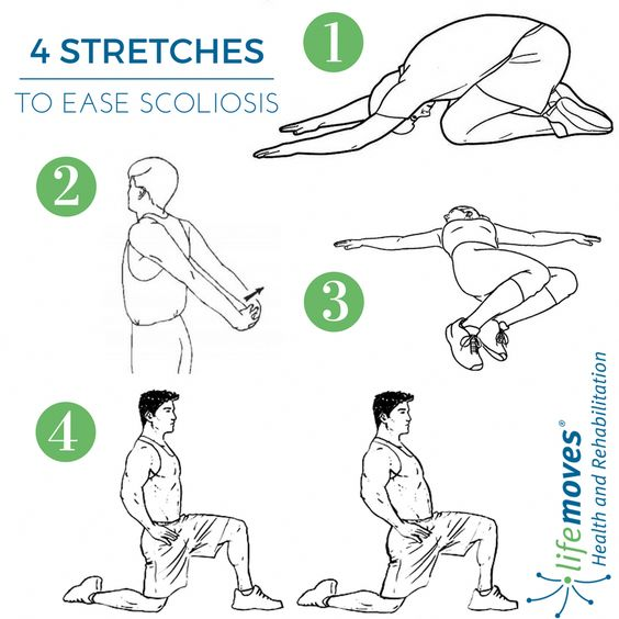 Stretches to ease Scoliosis