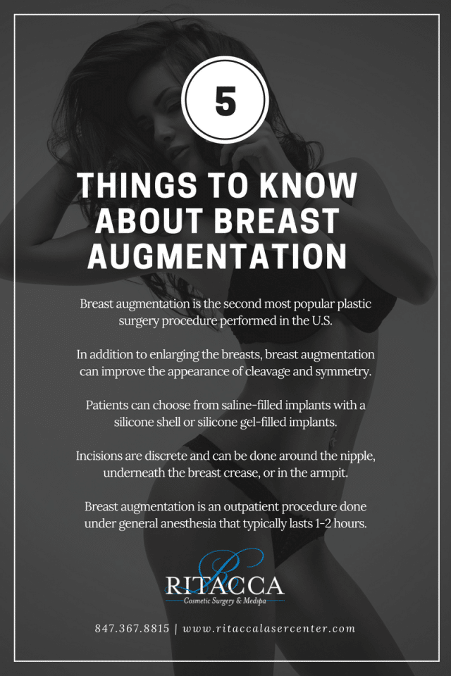 Things to know about Breast Augmentation