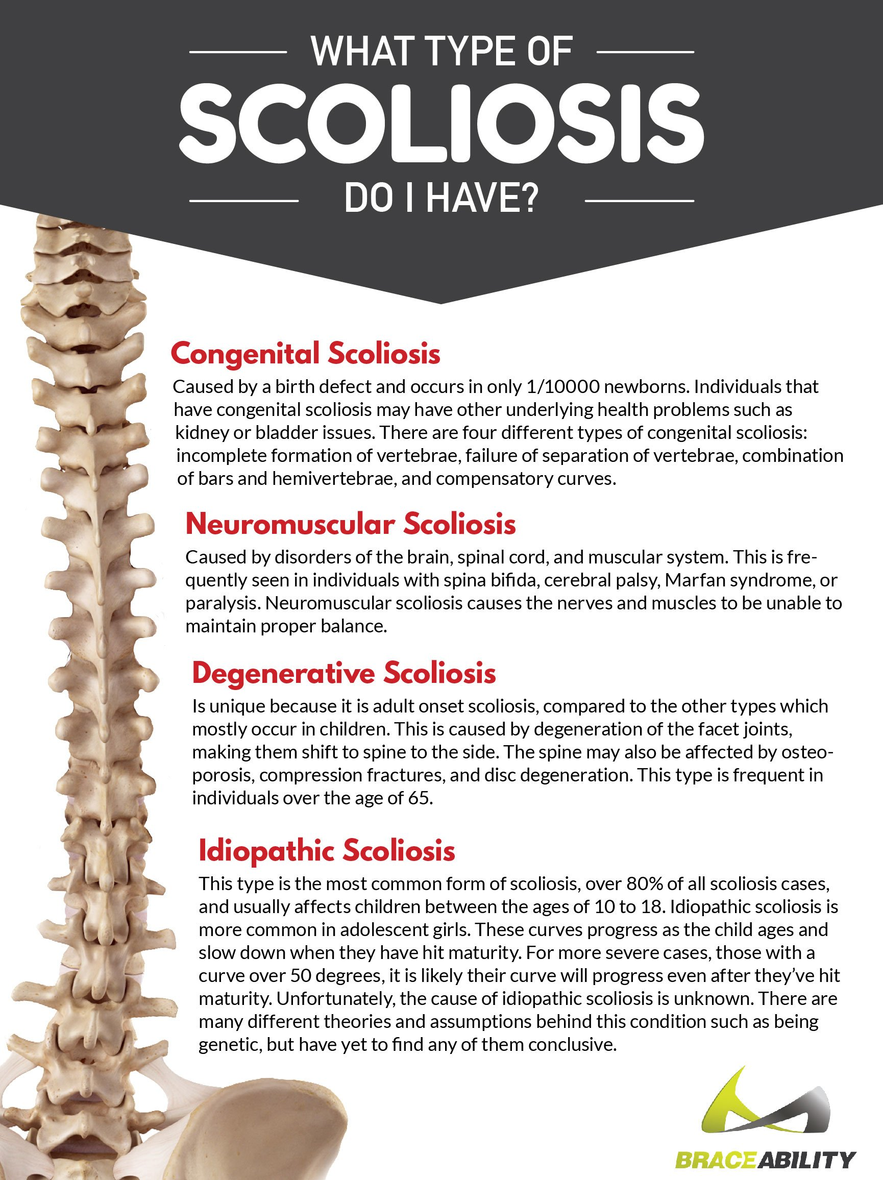 Types of Scoliosis