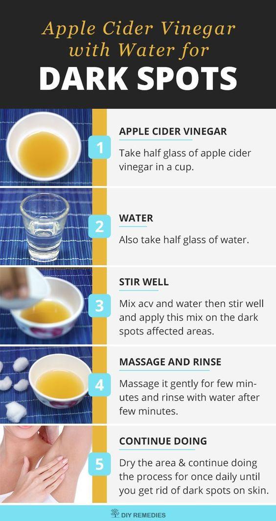 Apple Cider Vinegar and Water for Dark Spots