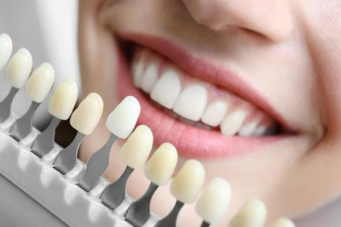 5 Ways Tooth Replacement Benefits Your Health