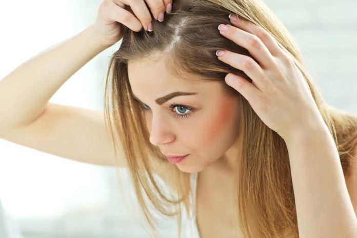 How To Combat Female Pattern Baldness