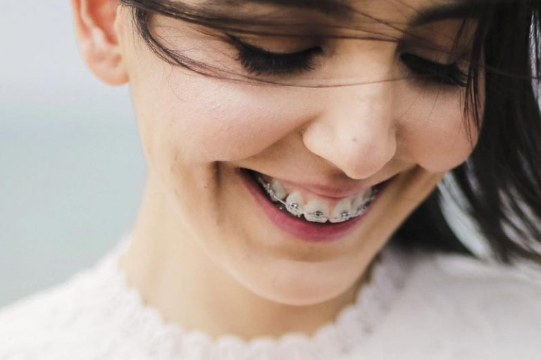 The Benefits of Visiting an Orthodontist