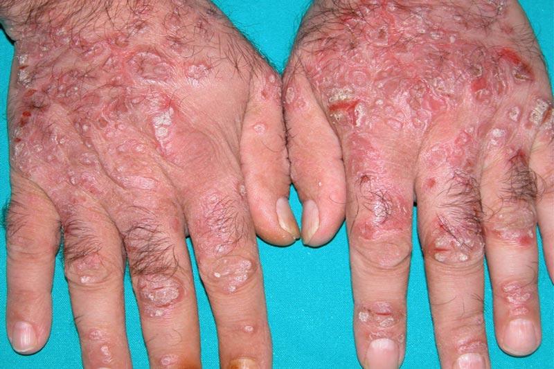 Allergenic reaction on skin
