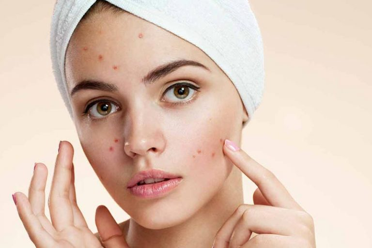 Hormones and Skin Condition