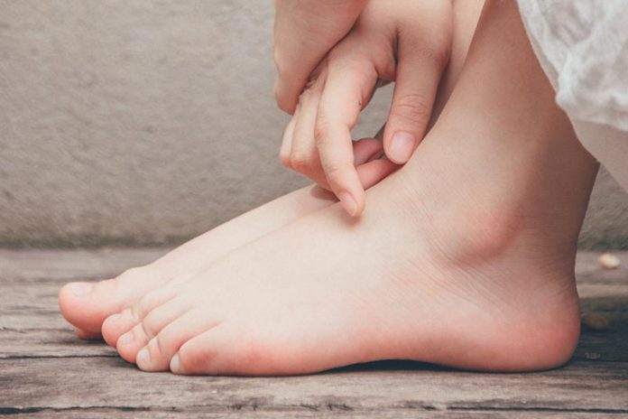 How to Recognize and Treat Ordinary Foot Disorders