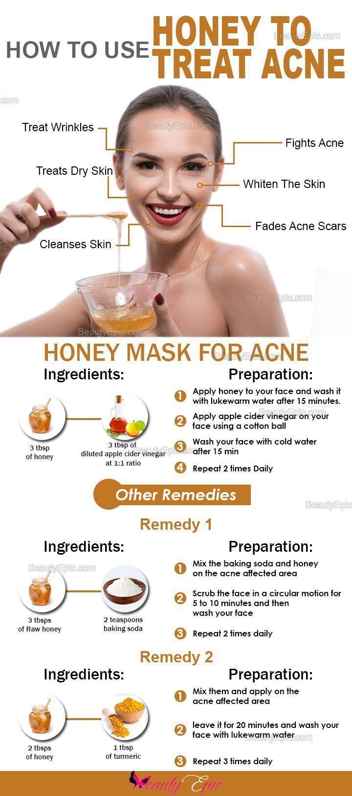 How to use Honey to Treat Acne