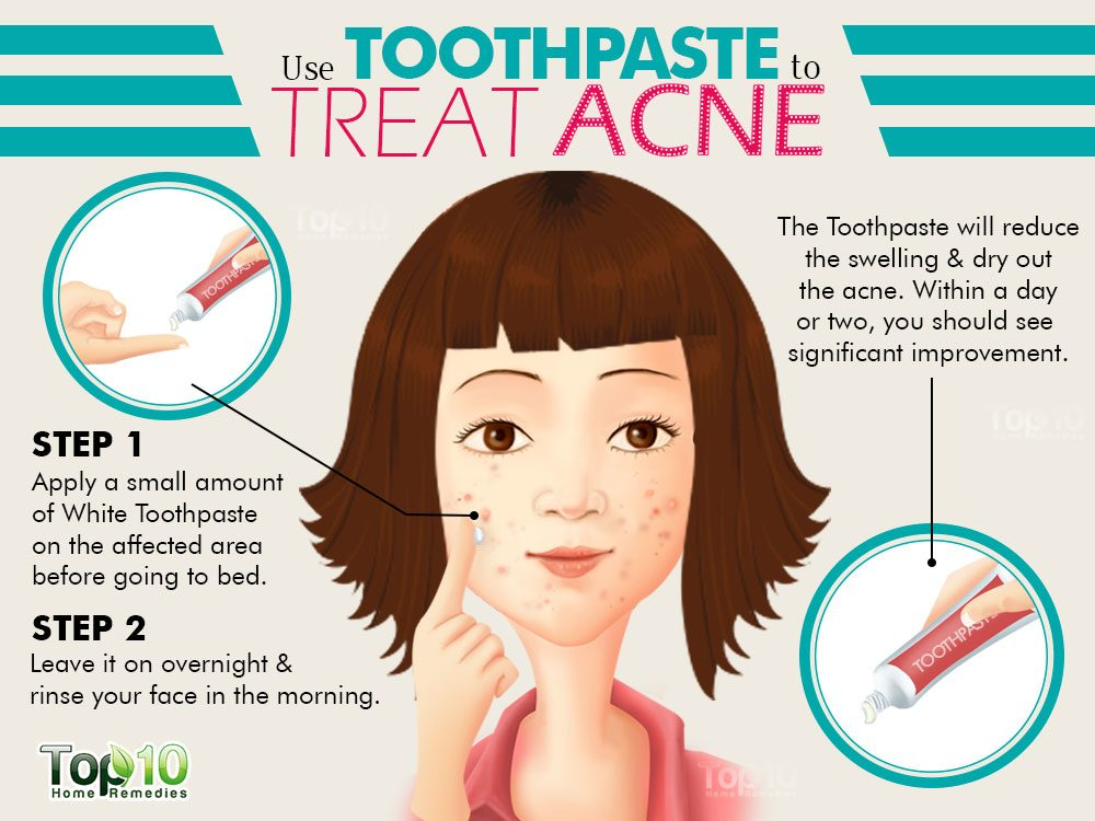 How to use Toothpaste to treat Acne