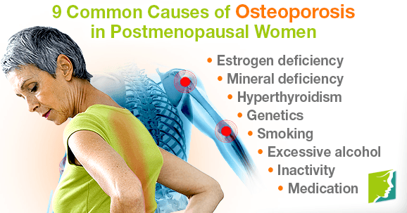 Common causes of osteoporosis in postmenopausal women