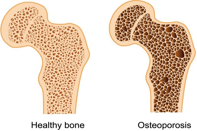 Density of your bones