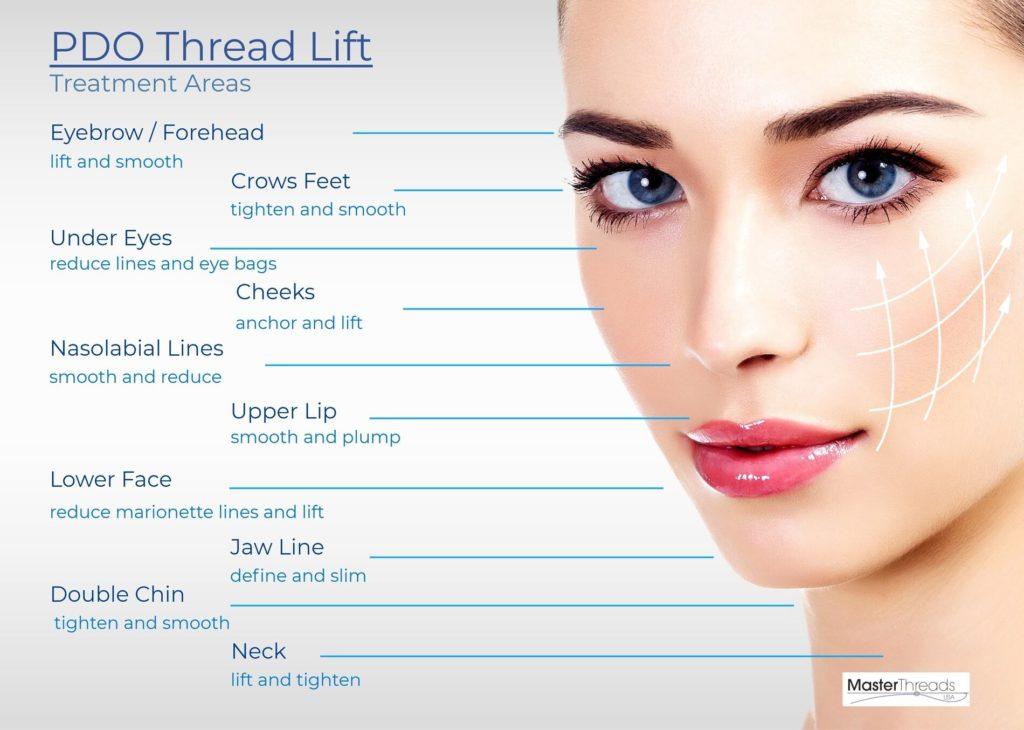 PDO Thread lifts Treatment Areas