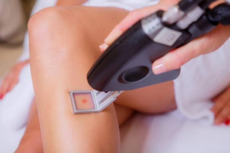 Reasons to try laser hair removal bikini