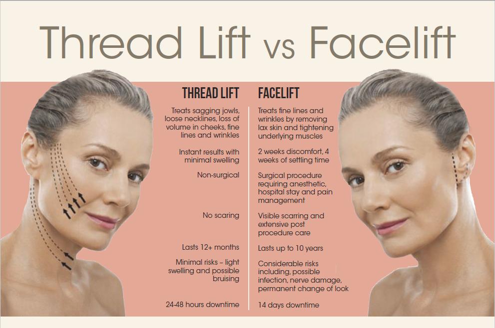 Thread lift vs Face lift