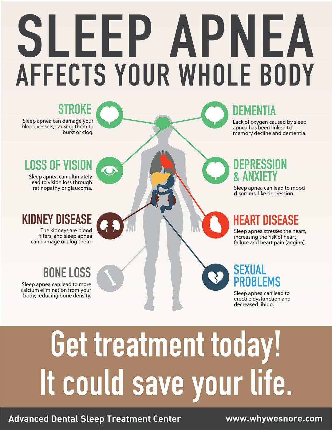 Sleep Apnea affects whole body