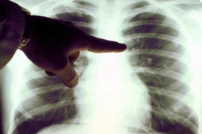 What Are the Early Signs of Lung Cancer?