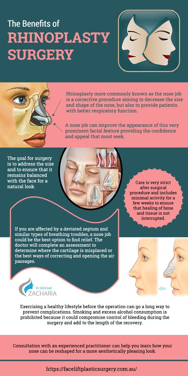 Benefits of Rhinoplasty Surgery