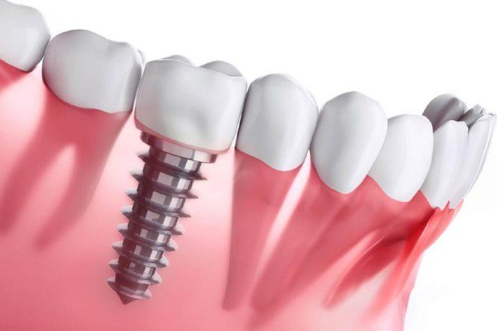 Dental Implant Procedure Explained in 3 Simple Steps