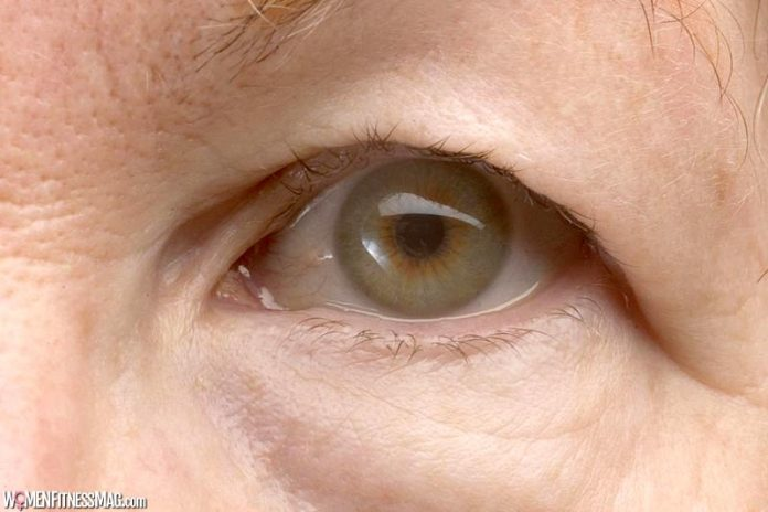 10 Things to Know About Droopy Eyelid Surgery in Singapore