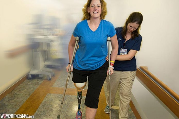 4 Things to Know About Using Prosthetic Limbs