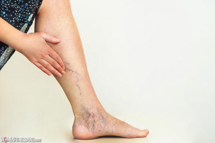 7 Key Things You Should Know About Varicose Veins