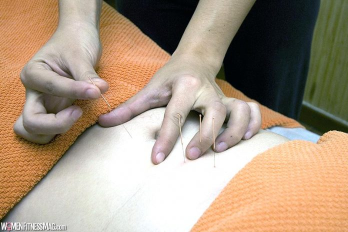 How Chinese Acupuncture Boosts Fertility: Does it Work?